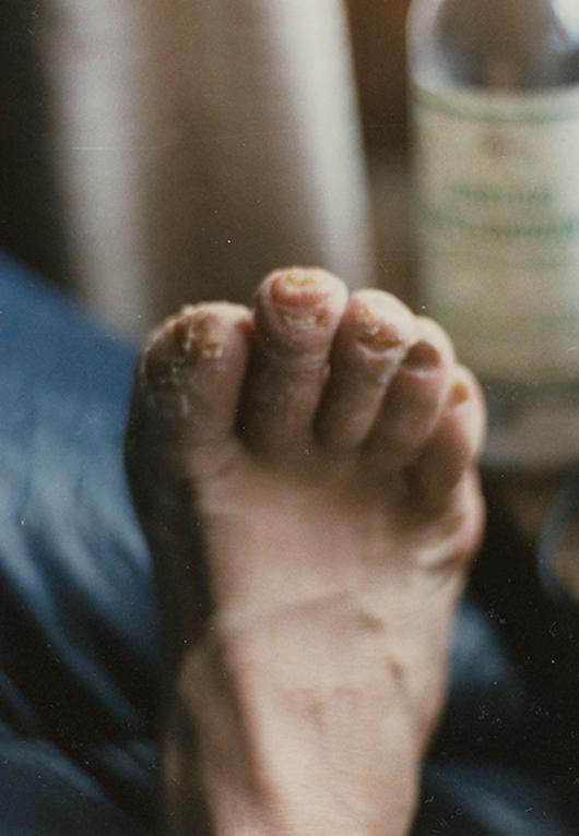 Odmrożone stopy Jerzego Kukuczki po zejściu z Cho Oyu.